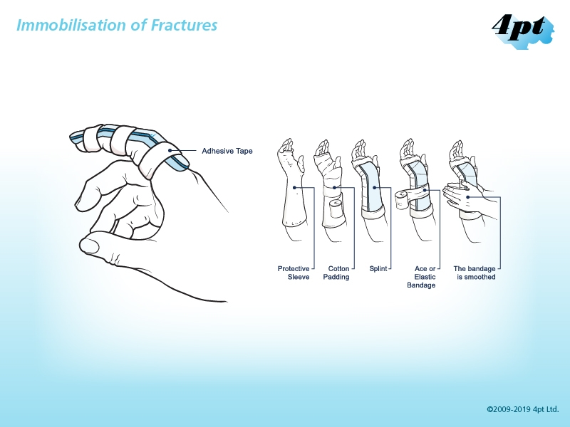 Immobilisation of Fractures